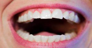 Saiba tudo sobre o seu dente e suas estruturas