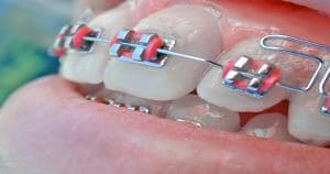 Função do elástico odontológico no tratamento ortodôntico