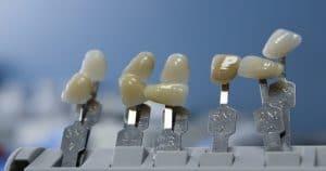 Vantagens e desvantagens da prótese adesiva