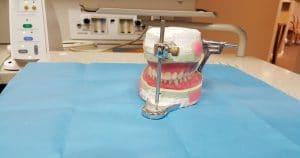 Prós e contras da prótese dentária de silicone