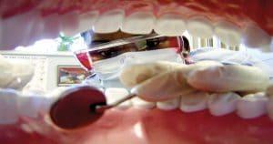Sorriso gengival tem diferentes tipos de tratamento