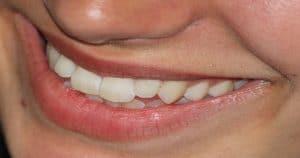 Dentes anteriores são o cartão de visita do nosso sorriso