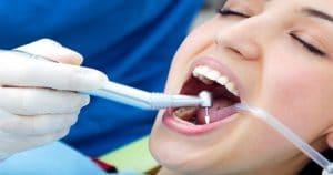 Contra-ângulo odontológico é acessório essencial para o dentista