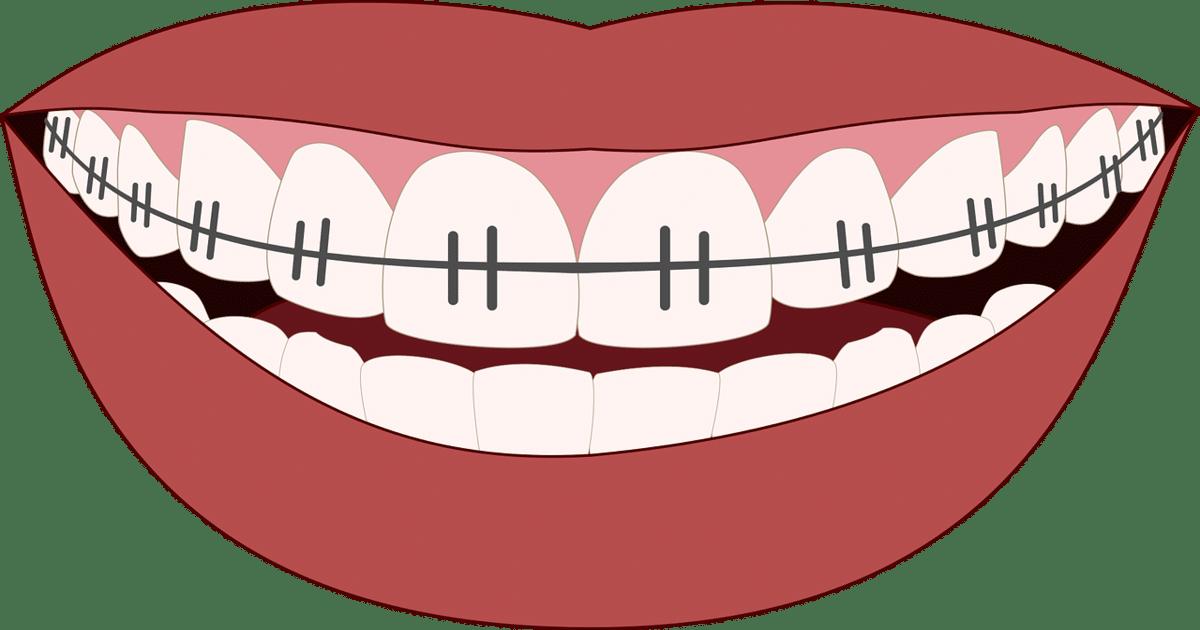 Ilustração de uma boca com aparelho ortodôntico - Conheça tudo o que você precisa saber sobre arcada dentária