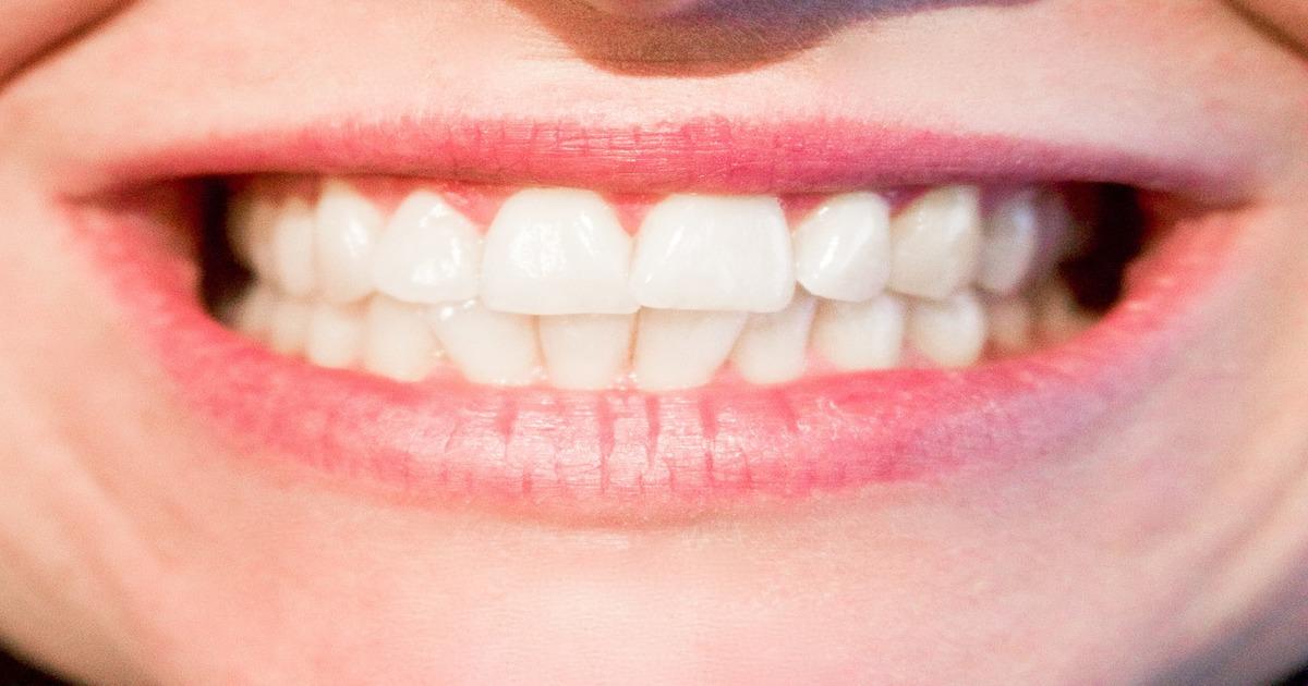 Sorriso mostrando dentes brancos - Conheça tudo o que você precisa saber sobre arcada dentária