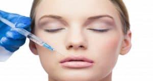 Lip Lift É Procedimento Estético Seguro e Muito Procurado?