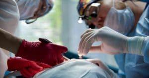 Ameloblastoma periférico: o que é e qual sua importância na odontologia?