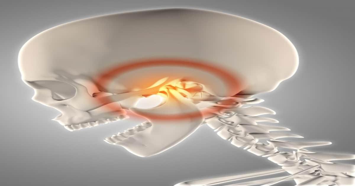 Crânio mostrando um problema na articulação temporomandibular - Descubra tudo o que você precisa saber sobre o maxilar