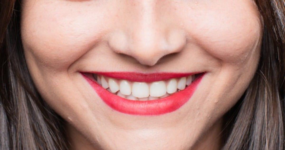 Diagrama de referências estéticas dentárias: qual sua importância?