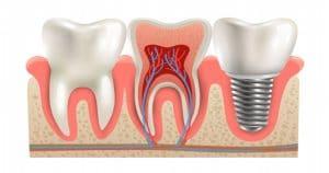 Diafanização é uma técnica que tem importância para a odontologia?