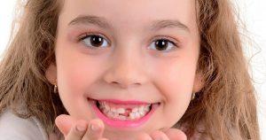 Criança sorrindo e mostrando o dente de leite que caiu - Entenda aqui o que fazer quando o dente permanente não nasce