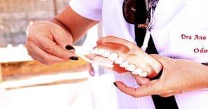 Dentista mostrando numa moldagem odontológica como fazer a escovação - Tártaro pode deixar a prótese dentária amarelada