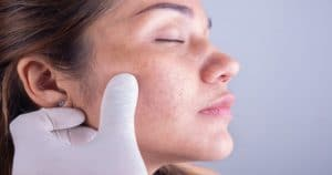 Esclerodermia compromete na rotina eficiente de higiene bucal