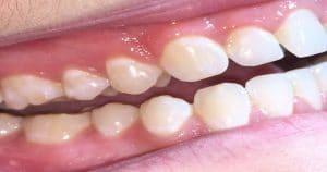 Arcada dentária entreaberta - Entenda o que é atrição dentária e o que ela pode causar