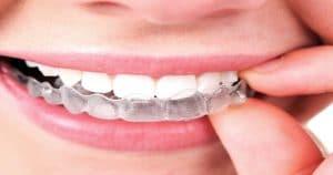 Paciente colocando a moldeira de clareamento dental - Quanto tempo ficar com a moldeira de clareamento dental?