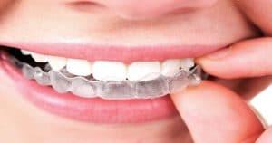 Pessoa encaixando um aparelho Invisalign nos dentes - Conheça tudo o que você precisa saber sobre o Invisalign