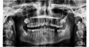 Biotipo facial: por que o dentista deve ter conhecimento sobre isso?