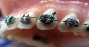 Aparelho ortodôntico nos dente superiores - Entenda como funciona a prescrição MBT e qual é seu objetivo
