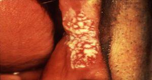 O que é eritroleucoplasia e como tratar essa doença? Confira!