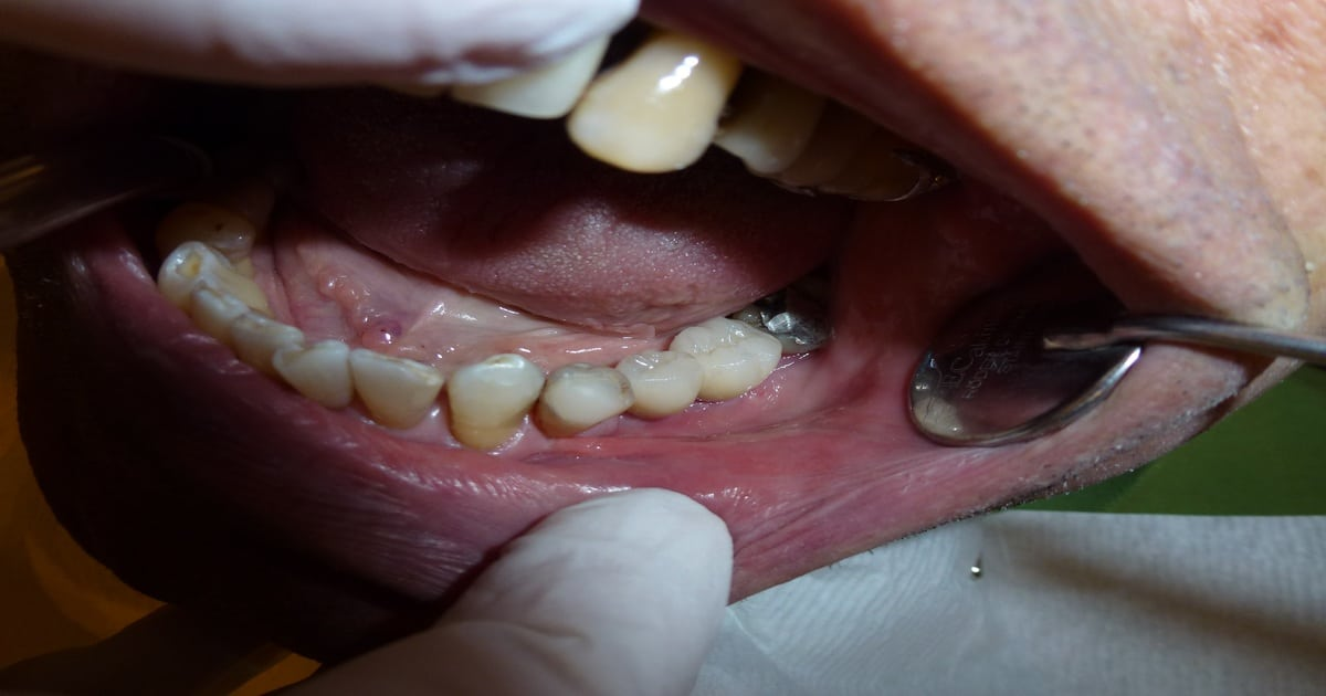 Implante unitário é melhor alternativa para perde de um dente