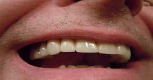 Recuperar esmalte do dente exige tratamento profissional