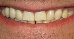 Sorriso mostrando os dentes da arcada dentária superior.