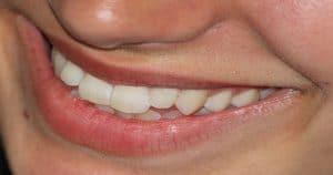 Foto de um sorriso aproximado, aparecendo os dentes da arcada dentária superior.