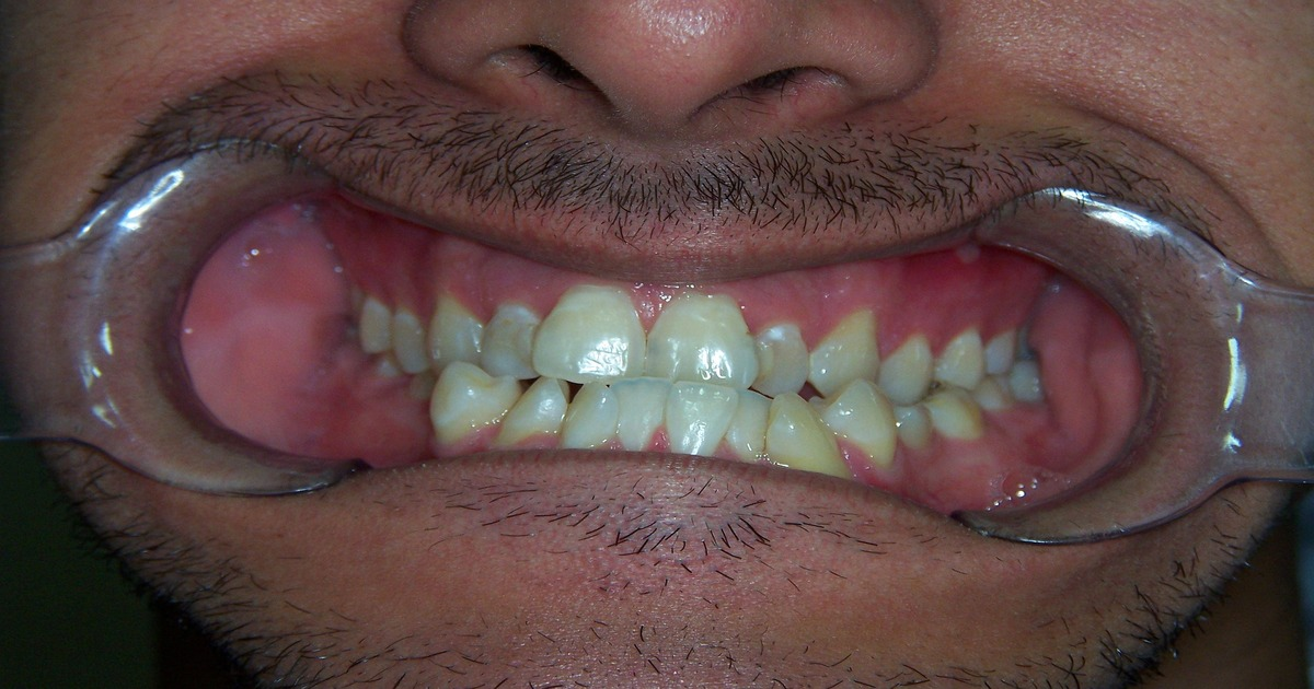 Paciente com o afastador de gengivas na boca mostrando seus dentes tortos.