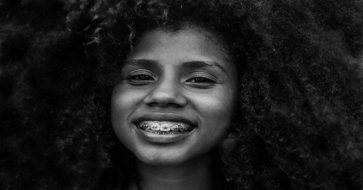 Mulher sorrindo e mostrando seu aparelho ortodôntico