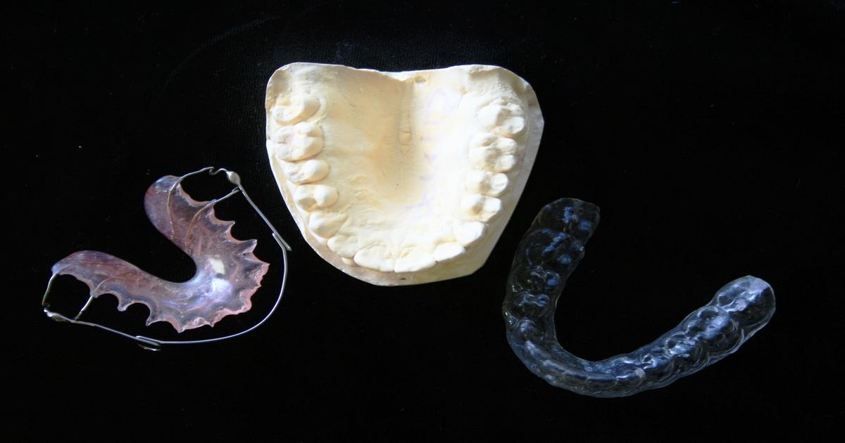 Quais as etapas do tratamento com aparelho?